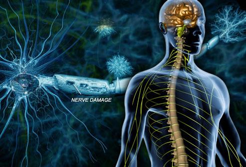 Bowen tretman, pomoć kod Multiple skleroze