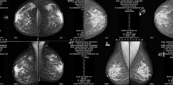 Mamografija, snimci