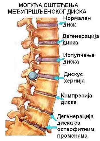 Bowen terapija za bol u leđima pršljenovi