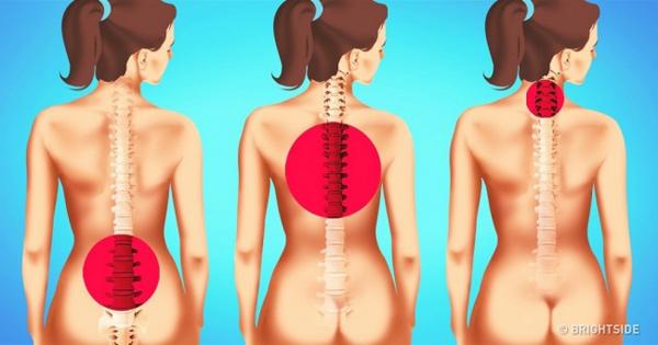 Bowen terapija za bol u leđima prikaz