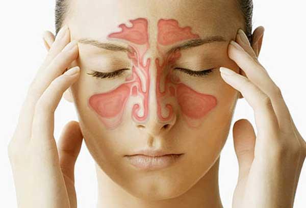 Glavobolja, sinusi